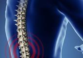lumbar_pain_diagram