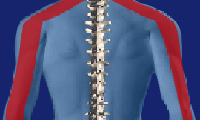 cervical radicular pain