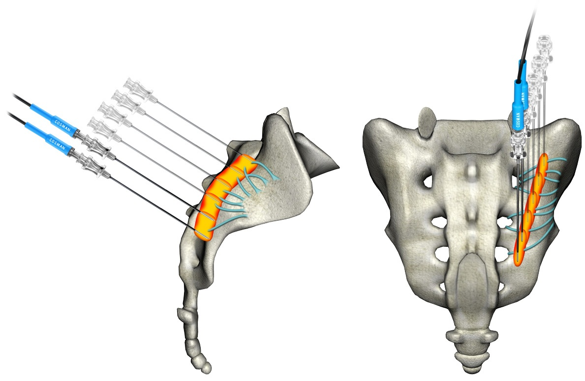 Interventional Pain therapies of Sacroiliac Joint | e-algos