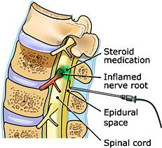 cervical transforaminal epidural steroid injections more dangerous than we think