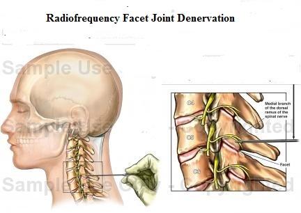 Cervical Facet Joint Syndrome E Algos