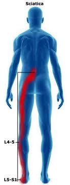 Radiculopathy, Radiculitis and Radicular Pain