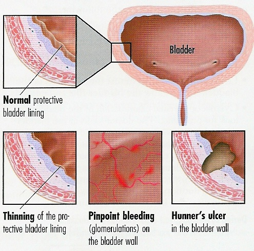 lasix sulfa allergy