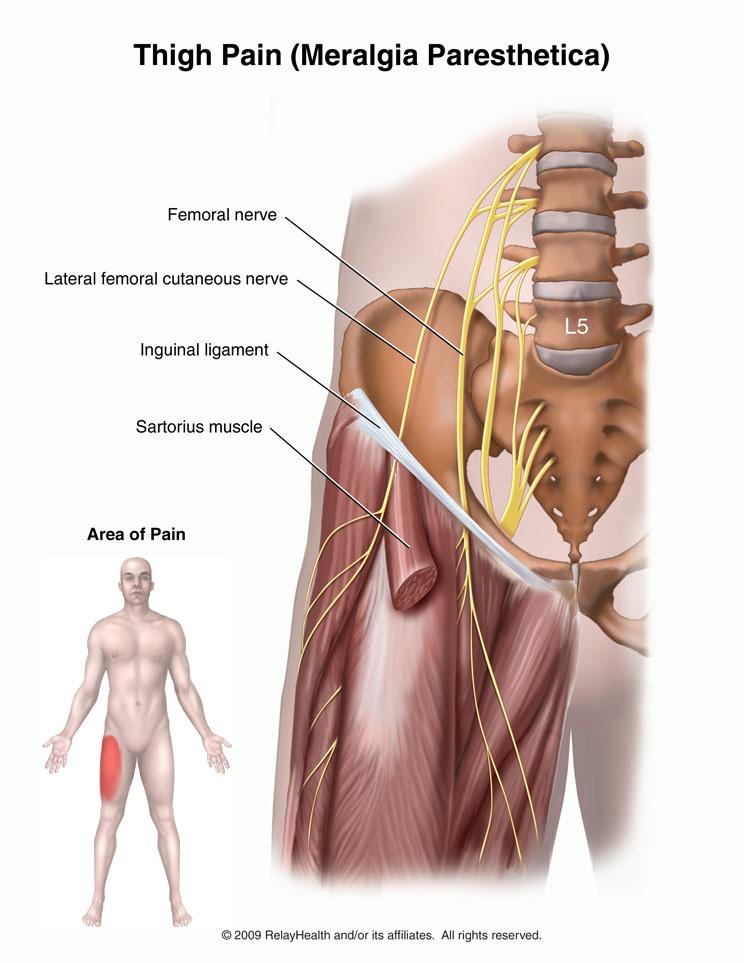 meralgia paraesthetica | e-algos, Muscles