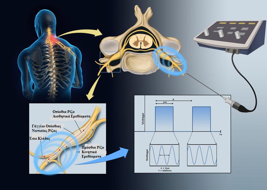 Neurontin Help Chronic Pain